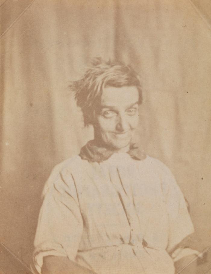Πορτρέτο ασθενούς στο Άσυλο του Σάρεϊ, c 1855 από τον Dr. Χιου Ουέλτς Ντάιαμοντ (Dr Hugh Welch Diamond). Ο Ντάιαμοντ ήταν ψυχίατρος και φωτογράφος που συνήθιζε να φωτογραφίζει τους ασθενείς του για να κρατάει αρχείο της έκφρασης του προσώπου τους. Πίστευε πως οι καλοτυπίες του θα βοηθούσαν στην αγωγή ατόμων με προβλήματα διανοητικής υγείας.