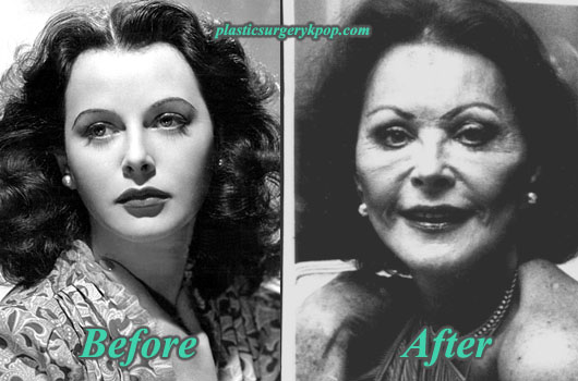 Hedy Lamarr before-after